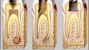 Лечение острого серозного периодонтита