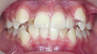 Методы лечения протрузии зубов