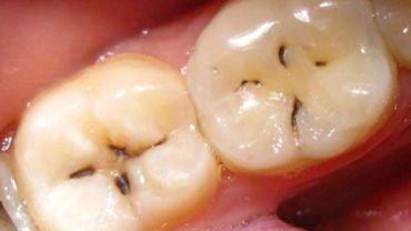 Кариес зубной эмали