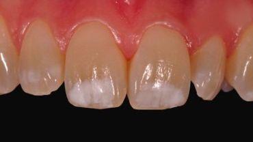 Диагностика и терапия флюороза зубов