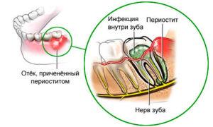 Лечение гнойного периостита челюсти