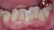 Причины скученности зубного ряда