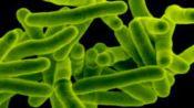 Симптомы и лечение туберкулезного лимфаденита