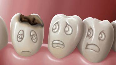 Лечение зубного кариеса