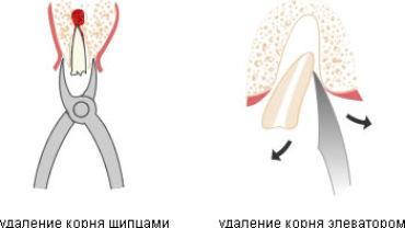 Удаление корней зубов