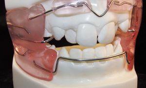 Съемных и несъемные ортодонтическе аппараты