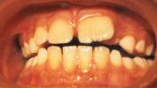 Аномальное увеличение коронковой части зуба — макродентия