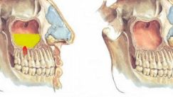 Особенности одонтогенного гайморита (синусита)