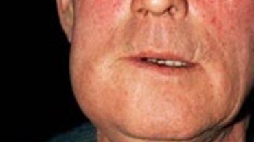 Симптомы и лечение хронического периостита
