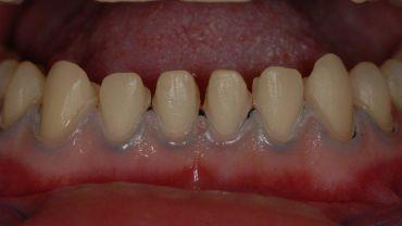 Микродентия или маленькие зубы