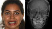 Анкилоз височно-нижнечелюстного сустава