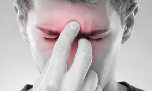 Невралгия носоресничного нерва (синдром Чарлина)