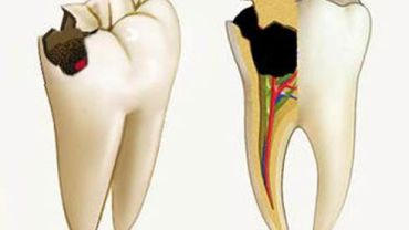 Воспаление нерва зуба (пульпит)