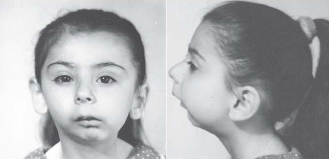 Анкилоз ВНЧС (височно-нижнечелюстного сустава) у детей лечение симптомы