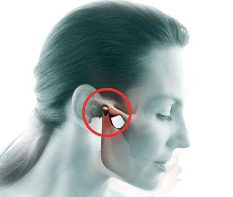 Артрит ВНЧС: причины, симптомы и лечение воспалительного процесса