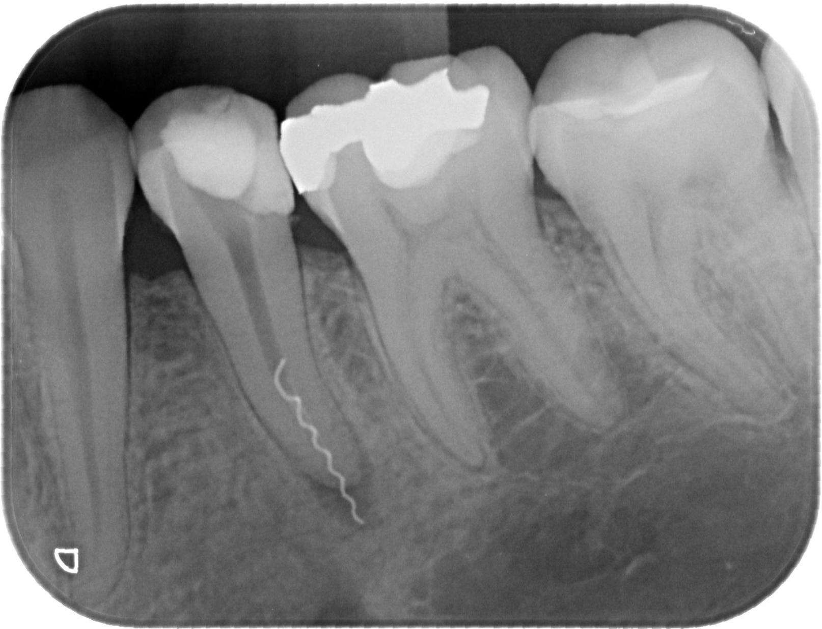 Почему беременным нельзя делать рентген зубов