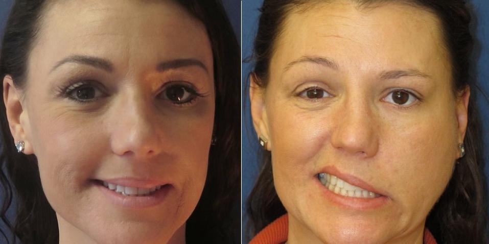 неврит лицевого нерва фото до и после лечения